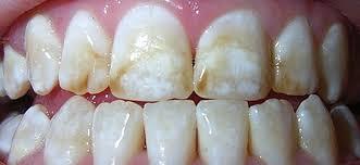 hoe kun je natuurlijk je tanden bleken